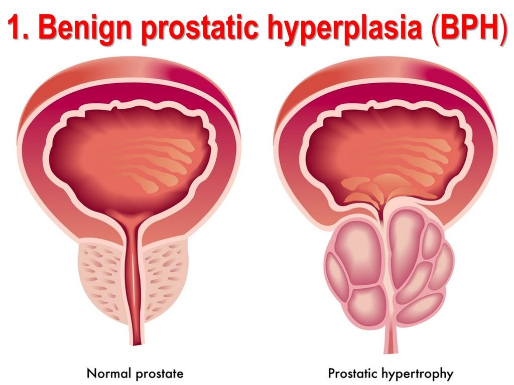 US Benign Prostatic Hyperplasia (BPH) Procedures