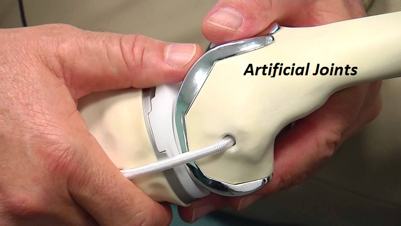 Artificial Joints