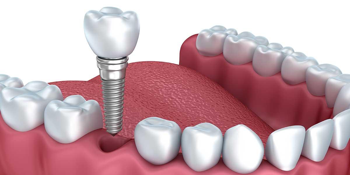 Dental Implants Market (1)