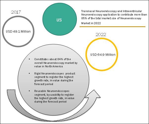 neuroendoscopy-market2