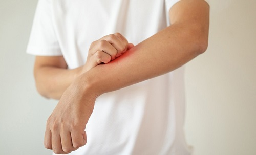 Atopic Dermatitis Treatment Market (1)