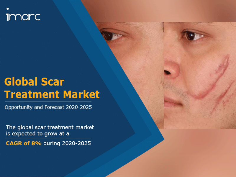 Scar Treatment Market 2020