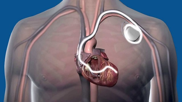 Cardiac Resynchronization Therapy Defibrillators