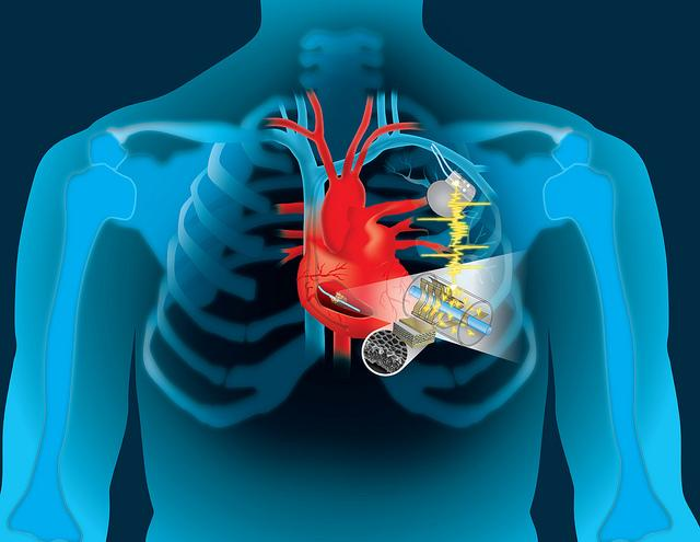 Cardiac Implant Devices market