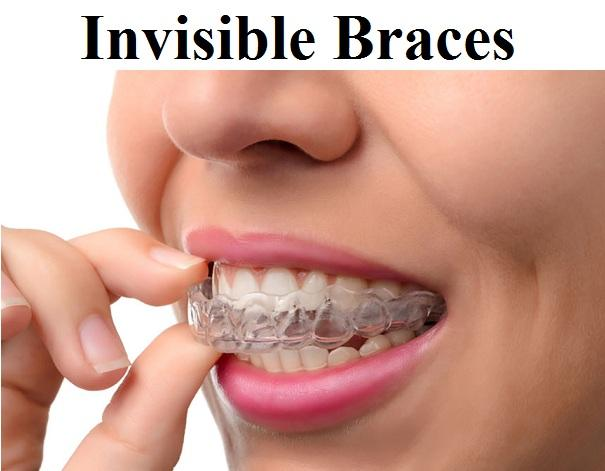 Invisible Braces market